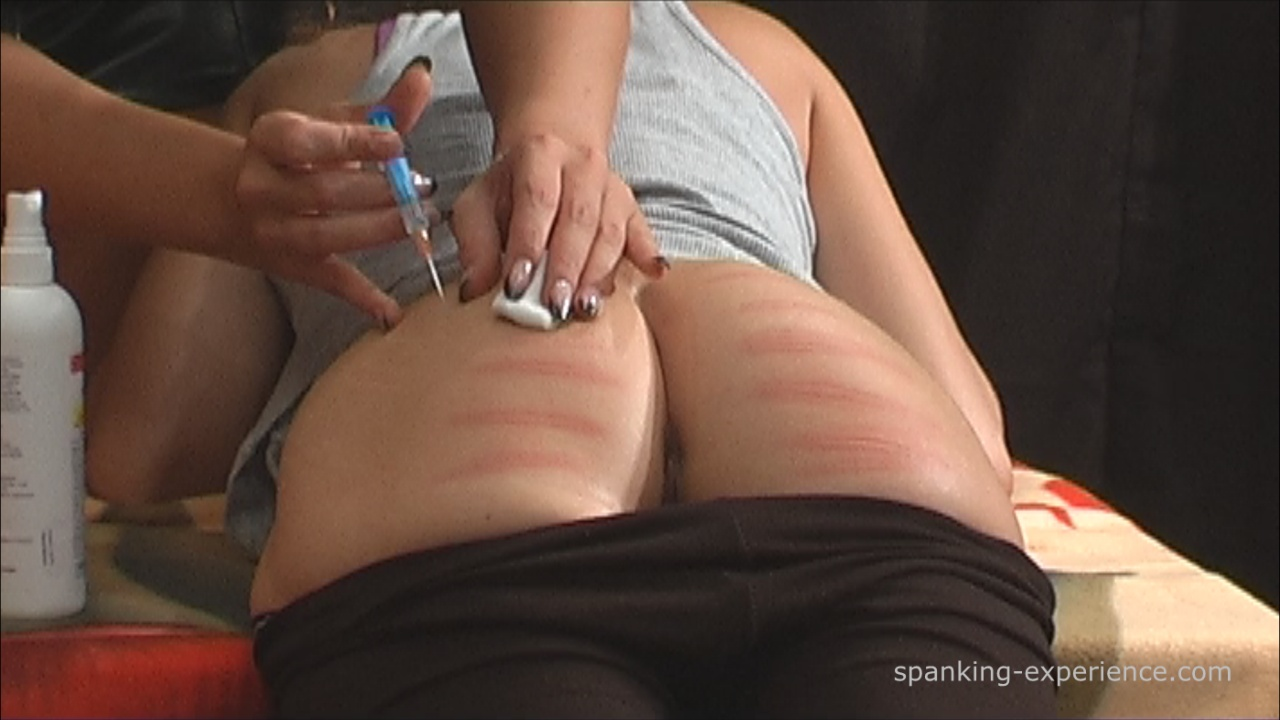Silicone butt injection removal my black